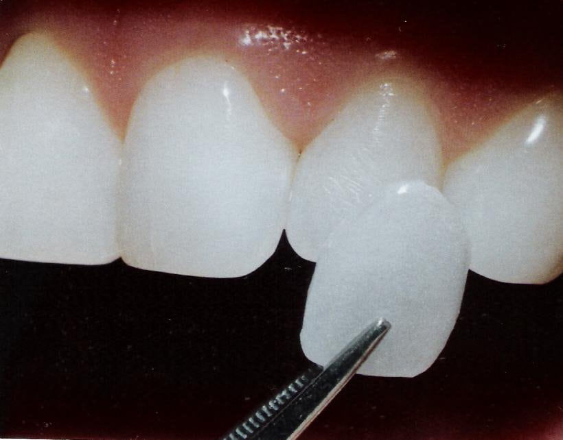 Tratamiento dentales: Carillas Composite, ortodoncia Malaga | Clínica dental Gross Dentistas