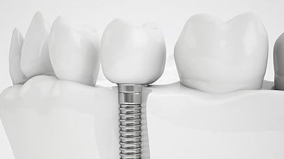 Implantología: te lo contamos todo sobre los implantes dentales | @GrossDentistas