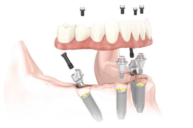 Todo sobre los implantes dentales | @GrossDentistas