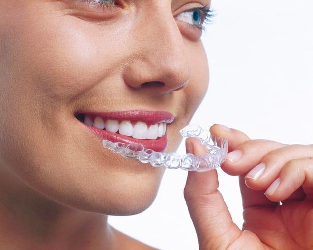 ortodoncia-invisible-invisalign1