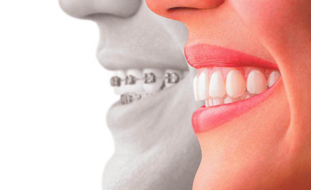 ¿Qué es una ortoncia? ¿Qué tipos hay? Te lo contamos en la web de @GrossDentistas | Ortodoncia en Málaga