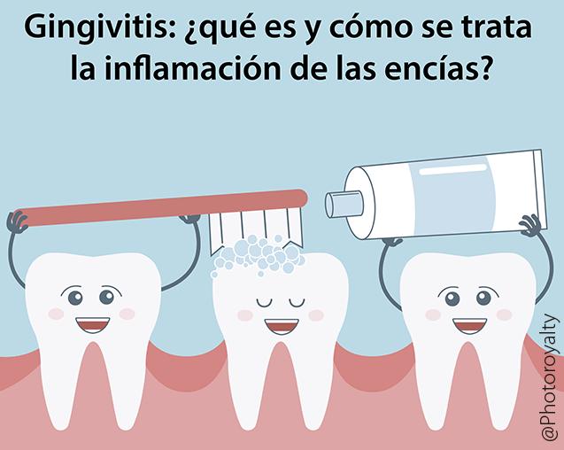 Gingivitis: ¿qué es y cómo se trata la inflamación de las encías? | @GrossDentistas
