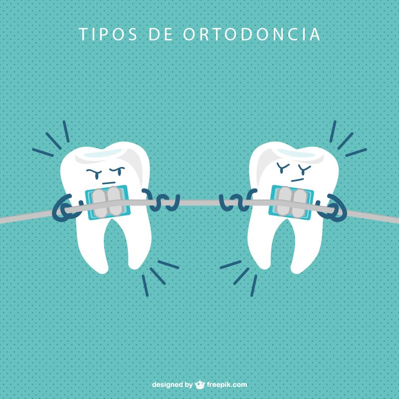 Tipos de ortodoncia. ¿Cuál es la mejor?